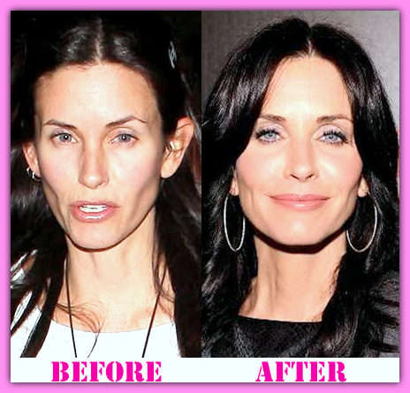 Courteney-Cox-plastic-surgery-before-and-after