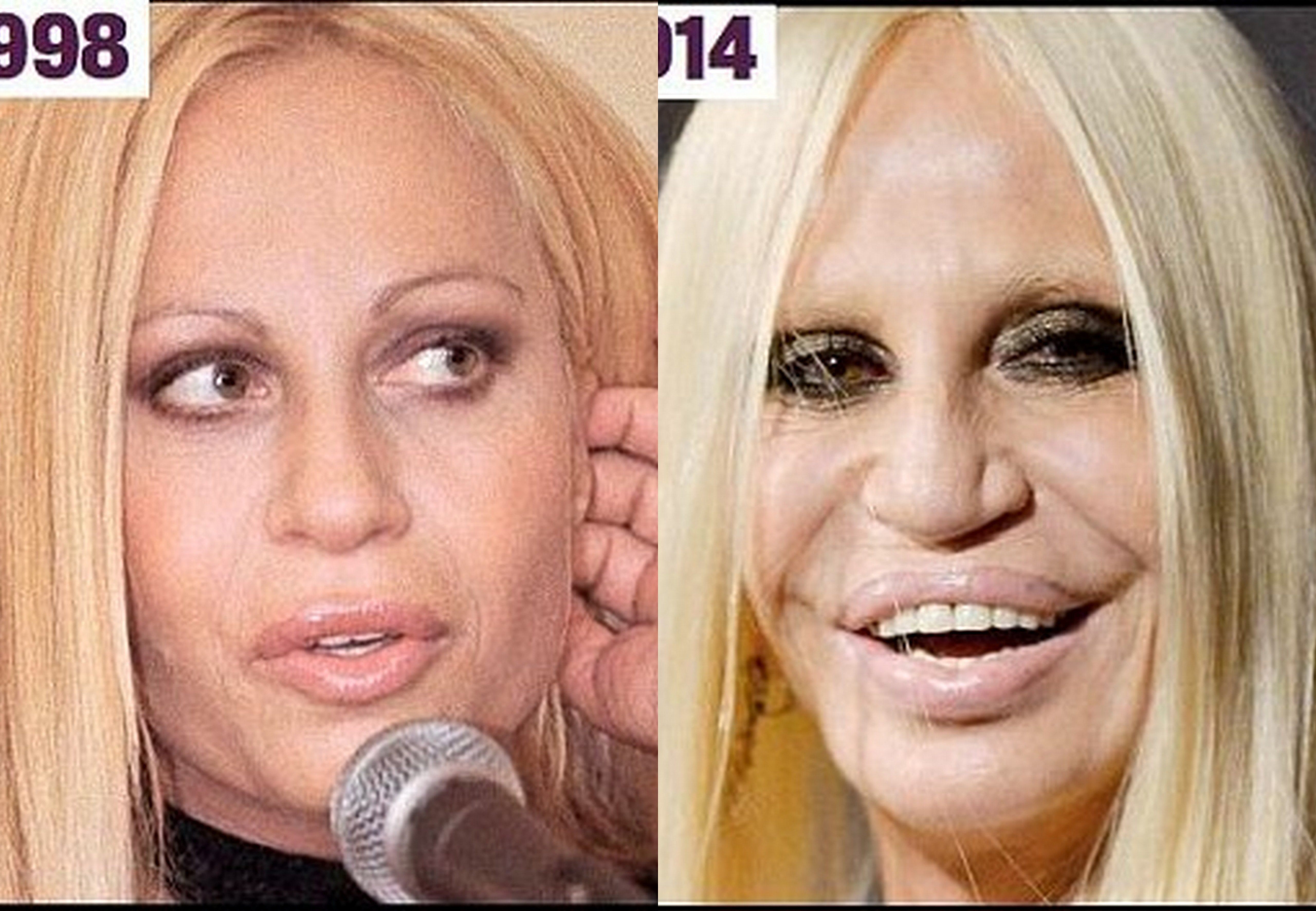 17 Celebs Who Have Had A Cosmetic Surgery | Wonder Wardrobes